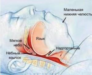 Лечение храпа (апноэ сна)