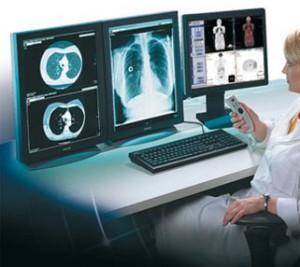 Пройдите рентгенографию в Клинике «Больничная»!